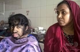 バングラディシュの狼男症候群少女