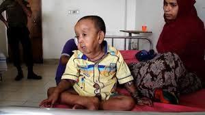 バングラディシュの4歳児老人
